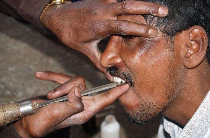 Dentiste de rue en Inde